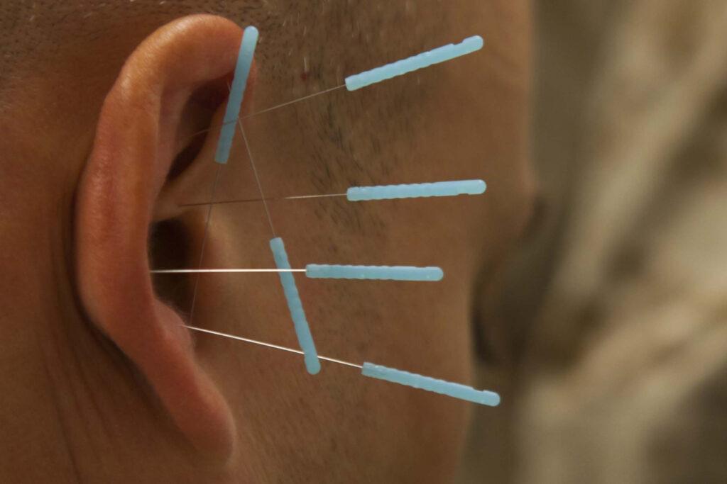 acupuntura obesidad